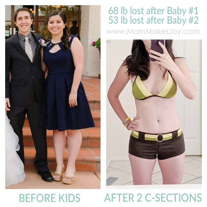 Before and After Comparison of Postpartum Weight Loss After 2 C-Sections